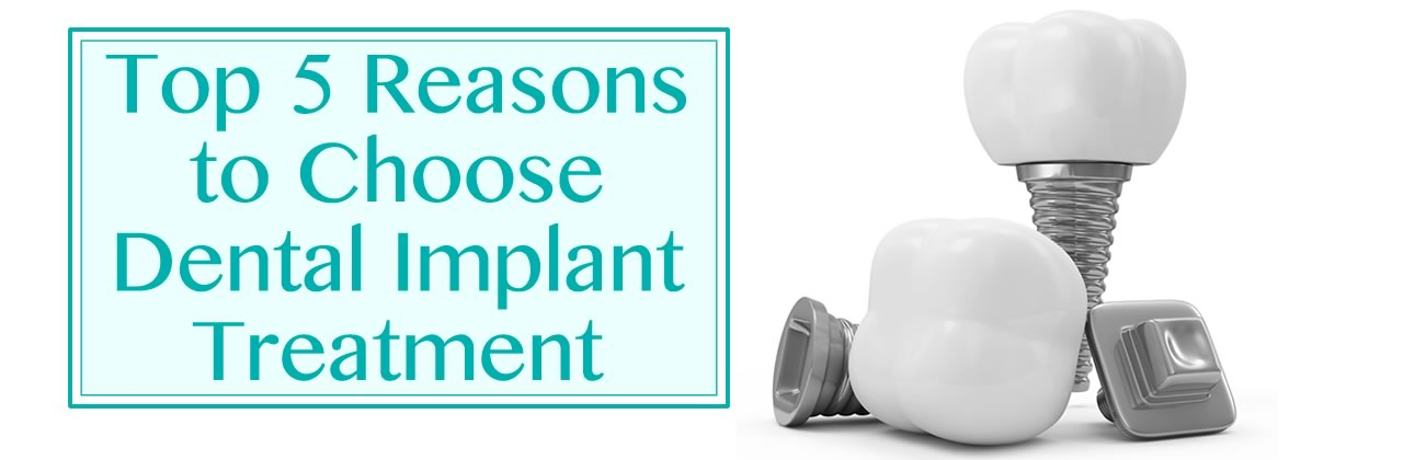 Top 5 Reasons to Choose Dental Implant Treatment in California